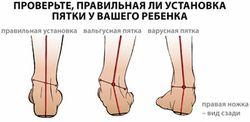 diagnostika_valgusnoj_deformacii_pervyx_palcev_stopy_1