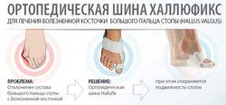 kak_lechit_valgusnuyu_deformaciyu_stopy_4