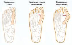 osnovnye_etapy_lecheniya_valgusnoj_deformacii_bolshogo_palca_stopy_4
