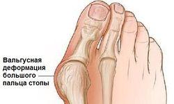 osnovnye_uprazhneniya_gimnastiki_1