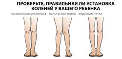 varusnaya_i_valgusnaya_deformaciya_stop_3