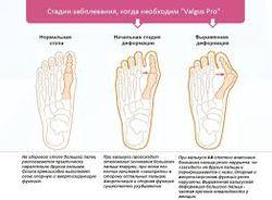 valgusnaya_deformaciya_stopy_i_armiya__3