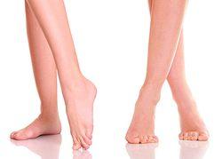 Что такое вальгусная деформация стопы?